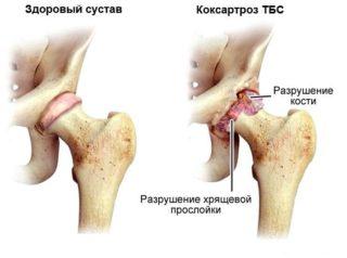 Боль и жжение в тазобедренном суставе