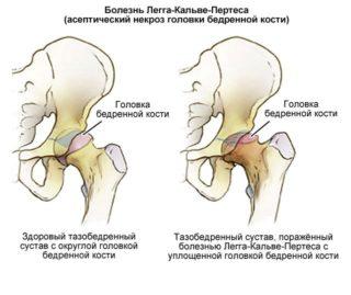 Когда необходима замена тазобедренного сустава?
