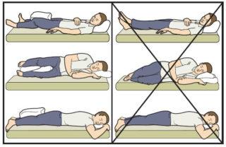 Эндопротезирование шейки тазобедренного сустава