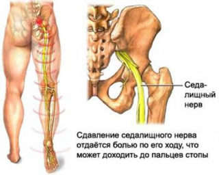 Болит бедро и тянет ногу