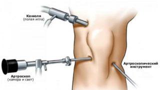 Как избавиться от синовиальной жидкости в коленном суставе лечение