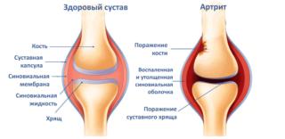 Болит колено при сгибании: причины и лечение