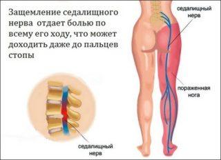 От чего может болеть нога с бедра и до ступни что делать