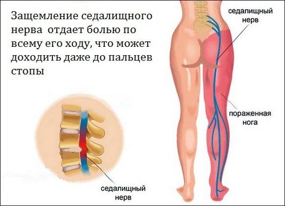 Ноющая боль в состоянии покоя в тазобедренном суставе артрит нижнечелюстного сустава лечение форум