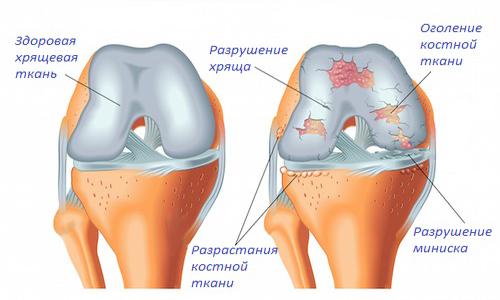 Народные средства от суставных болей Суставы