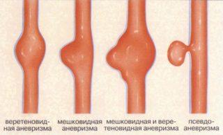 Чем опасна ложная аневризма бедренной артерии и способы ее лечения операционный компрессионный эндоваскулярный и народная медицина