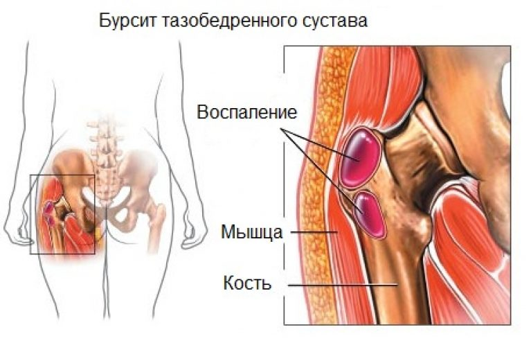 Болит тазобедренный сустав щелкает время восстановления височно-челюстной сустав