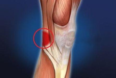 Тянет ногу под коленом сзади: причины и лечение