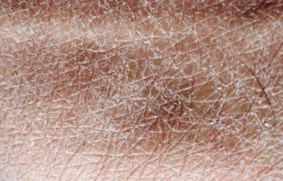 Сухая кожа на бедрах и ягодицах у взрослых и детей: причины, когда обращаться к врачу и как быстро избавиться от проблемы