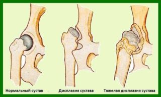 Изображение - Почему щелкает сустав в бедре displaziya-u-grudnichkov2-320x192