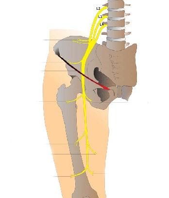 Защемление нерва в тазобедренном суставе: симптомы и лечение