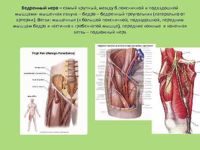 Невралгия бедренного нерва симптомы и лечение