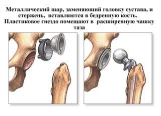 Изображение - Протез сустава шейки бедра hip3-320x232