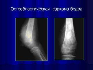 Рак тазобедренного сустава симптомы и проявление