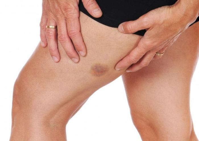 Пятна на ноге: красное пятно на ногах фото, причины