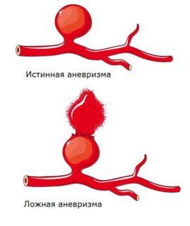 Бифуркационное аорто-бедренное протезирование, шунтирование