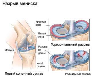 Болит колено и тянет ногу