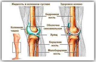 Скопление жидкости в коленном суставе после травмы