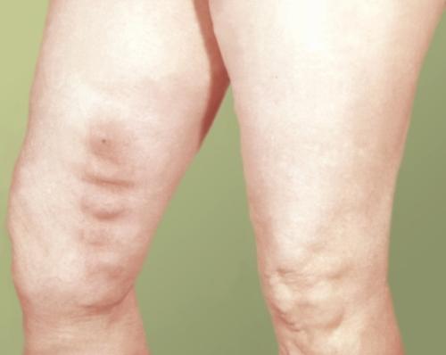 Тромб в бедренной артерии симптомы