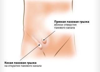 Боль в паху слева отдает в ногу