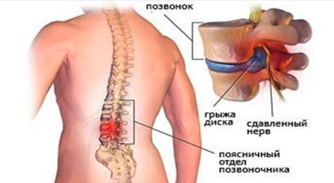 Как болят колени при межпозвонковой грыже