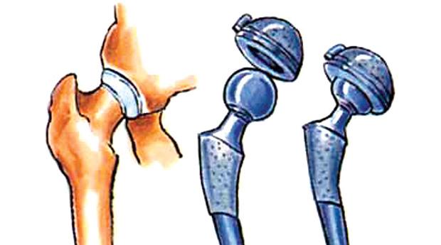Расшатался эндопротез тазобедренного сустава