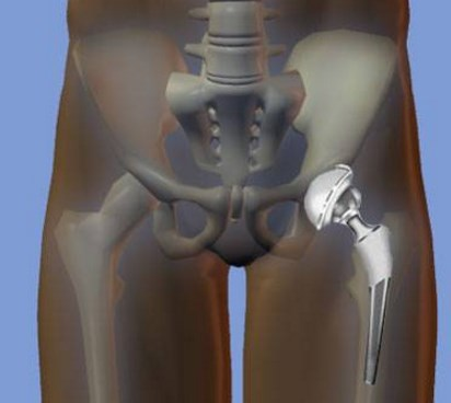 Дают ли инвалидность при замене тазобедренного сустава на протез