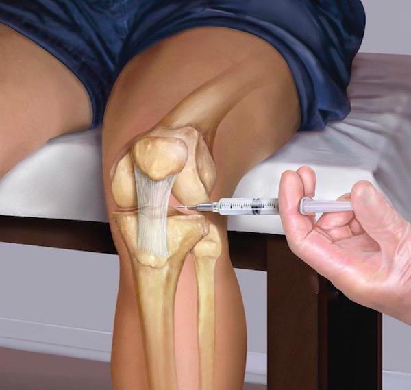 Блокада коленного сустава техника выполнения манипуляции что означает избыточное количество синовиальной жидкости в полости сустава