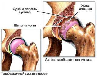 Трещина шейки бедра симптомы