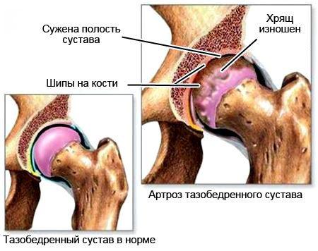 Трещина тазобедренного сустава фото что будет если заболят суставы