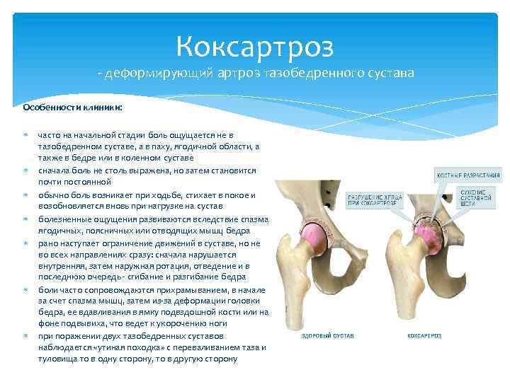 Квота на операцию замены сустава болит сустав галеностоп