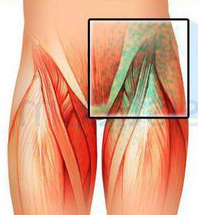 Лимфоузлы на ногах - почему происходит воспаление