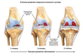 Мазь для суставов колена: обзор эффективных препаратов