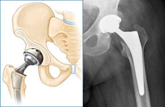 Больничный после эндопротезирования коленного сустава