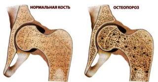 Отдаленные последствия эндопротезирования тазобедренного сустава