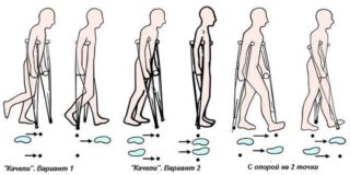 Сколько ходить на костылях после эндопротезирования тазобедренного сустава