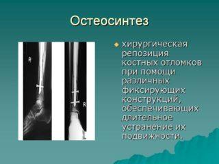 Остеосинтез шейки бедра реабилитация