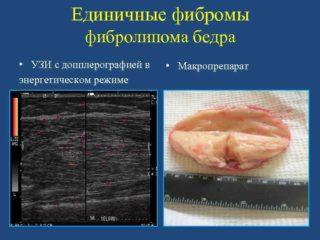 Фиброма бедренной кости
