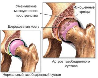 Блокада при коксартрозе тазобедренного сустава отзывы