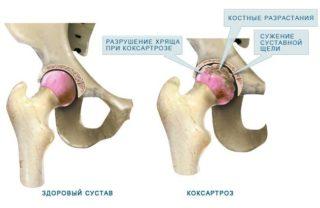 Изображение - Инъекции гиалуроновой кислоты в тазобедренный сустав Koksartroz-tazobedrennogo-sustava-3-stepeni-320x208