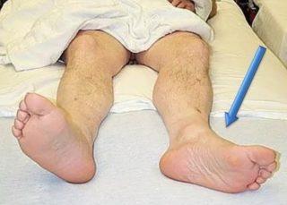 Коксартроз – причины, стадии, симптомы и лечение. Как лечить трещину в бедренной кости: симптомы, первая помощь, методы терапии и народная медицина