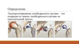 Эндопротезирование (замена) тазобедренного сустава