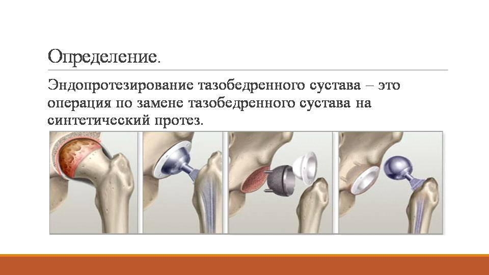 Замена тазобедренного сустава сроки восстановления тутор на локтевой сустав