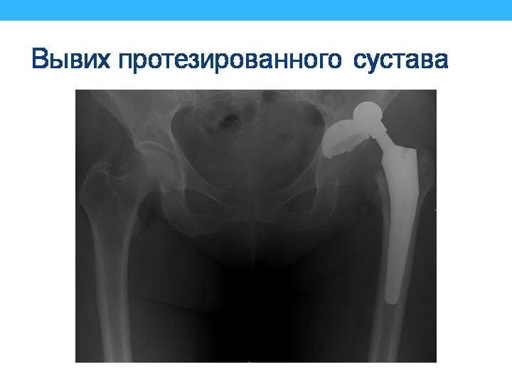 Эндопротезирование тазобедренного сустава ошибка по операции длинна протеза боли суставах таблетки