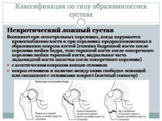 Изображение - Формирование ложного сустава при переломе шейки бедра Slide8-320x240