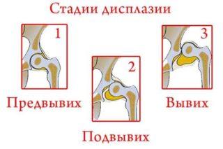 Формирование ядер тазобедренных суставов