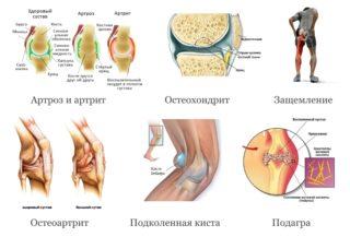 Как правильно делать компресс на колено