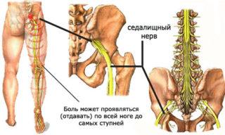 Боль в тазобедренном суставе у женщин, отдающая в ногу и ягодицу: возможные причины, когда обращаться к врачу и лечение