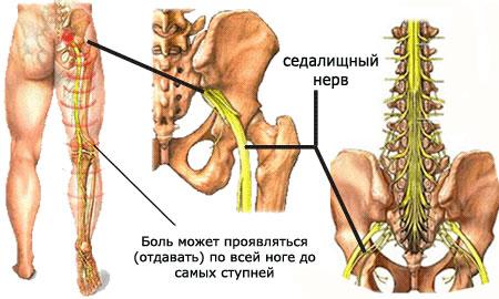 Дергающая боль в тазобедренном суставе гиалуроновая кислота для коленных суставов цена