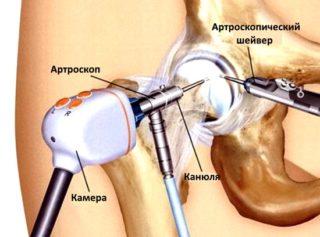 Артроскопия тазобедренного сустава - как и зачем проводится
